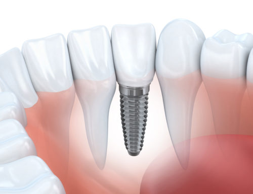 The Art of Dental Implants